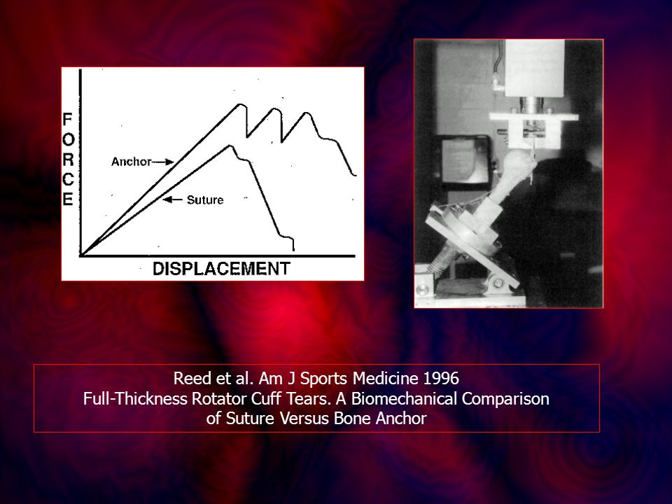 Reed et al. Am J Sports Medicine 1996 Full-Thickness Rotator Cuff Tears. A Biomechanical Comparison of Suture Versus Bone Anchor