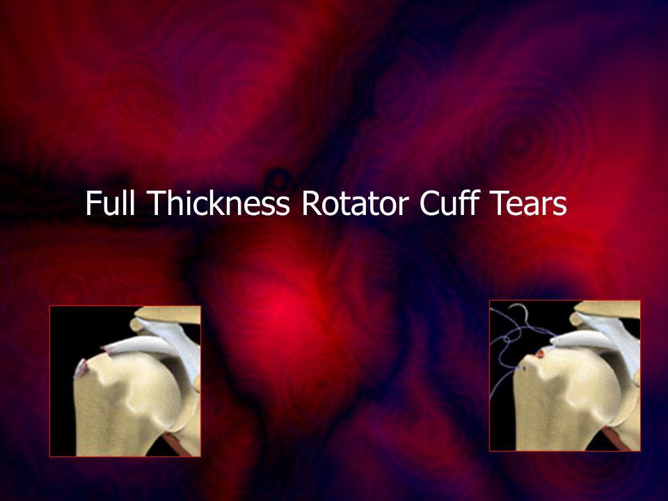 Full Thickness Rotator Cuff Tears