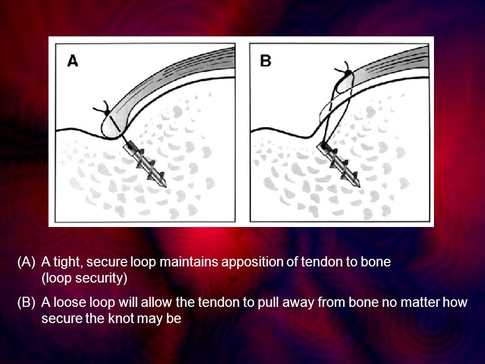 (A)A tight, secure loop maintains apposition of tendon to bone (loop security) (B)A loose loop will allow the tendon to pull away from bone no matter how secure the knot may be