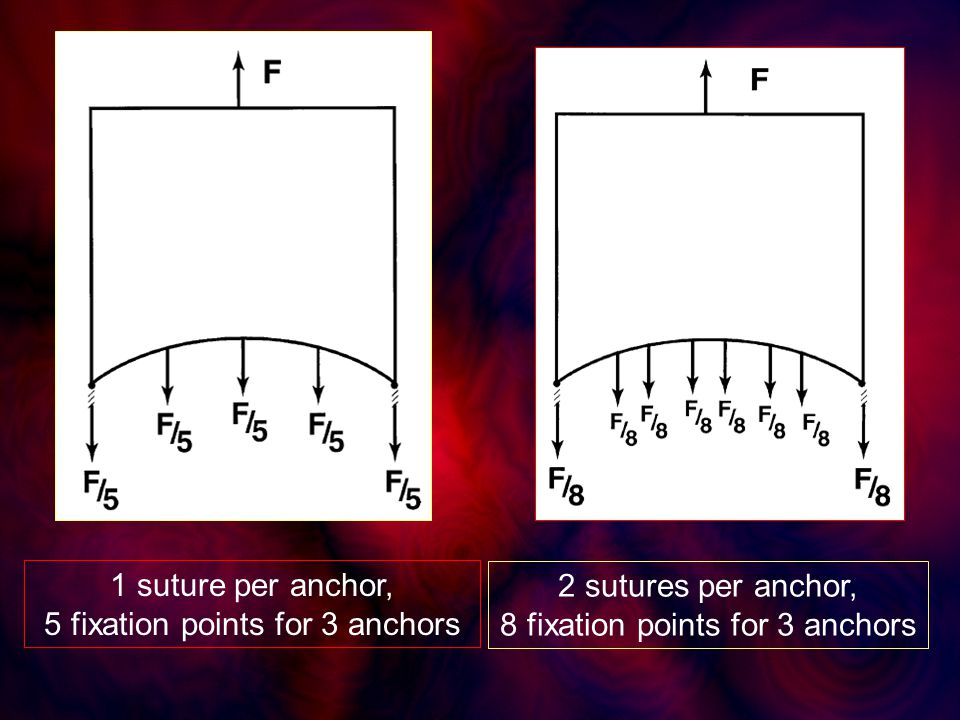 1 suture per anchor, 5 fixation points for 3 anchors 2 sutures per anchor, 8 fixation points for 3 anchors