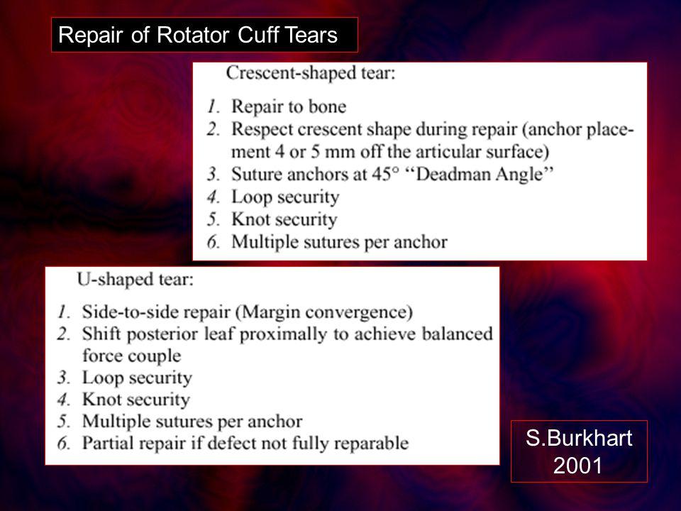 Repair of Rotator Cuff Tears S.Burkhart 2001