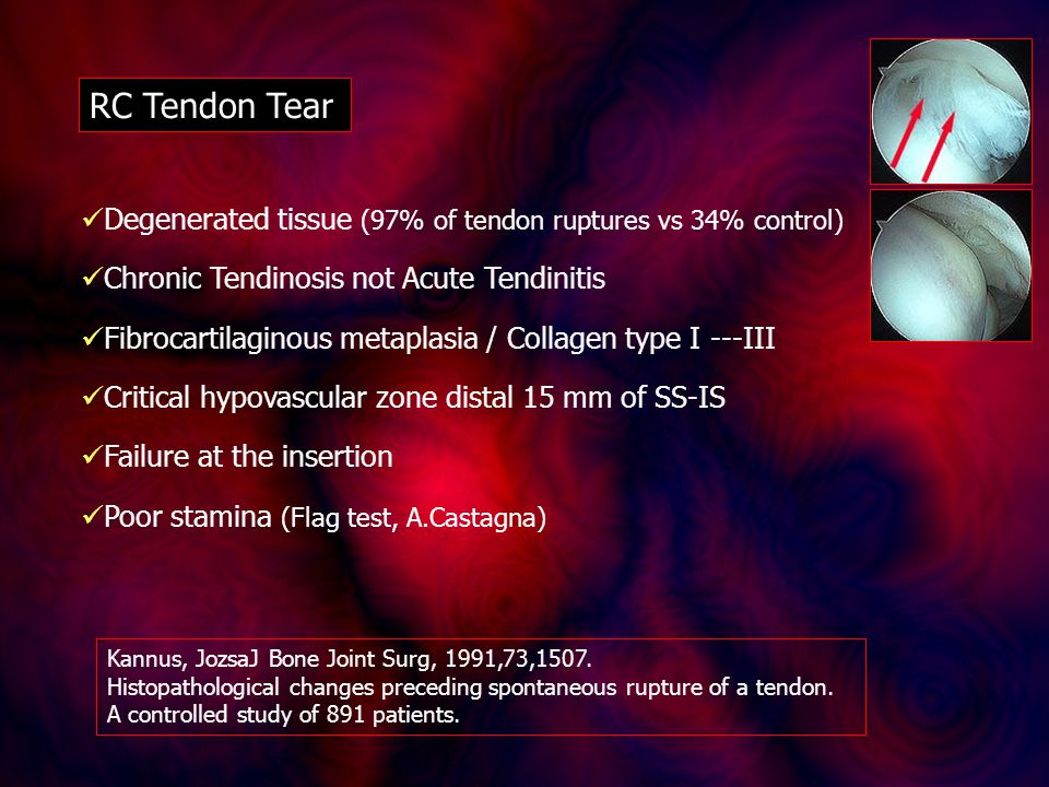 RC Tendon Tear Degenerated tissue (97% of tendon ruptures vs 34% control) Chronic Tendinosis not Acute Tendinitis Fibrocartilaginous metaplasia / Collagen type I ---III Critical hypovascular zone distal 15 mm of SS-IS Failure at the insertion Poor stamina (Flag test, A.Castagna) Kannus, JozsaJ Bone Joint Surg, 1991,73,1507.