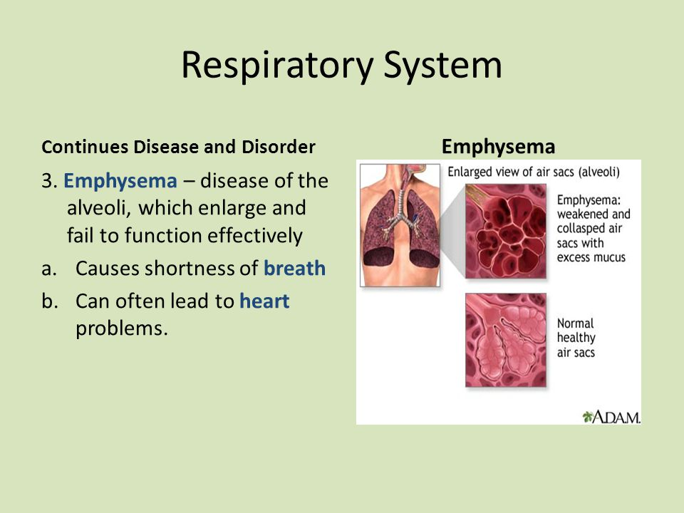 Respiratory System Continues Disease and Disorder 3.