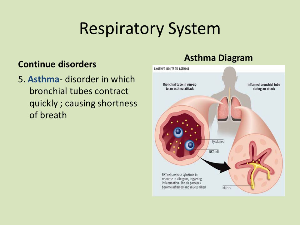 Respiratory System Continue disorders 5.
