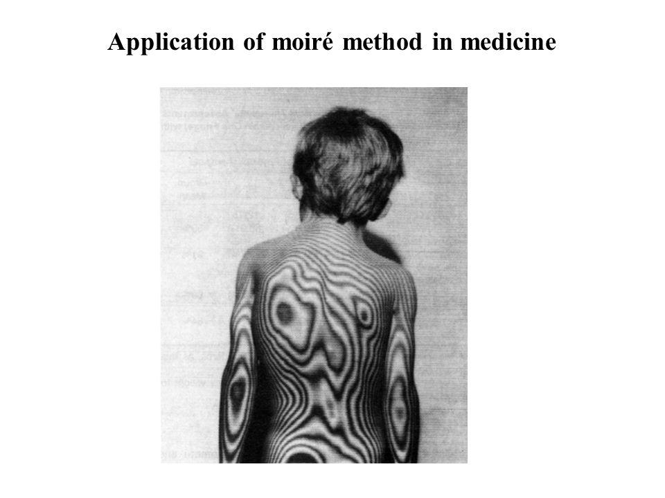 Application of moiré method in medicine