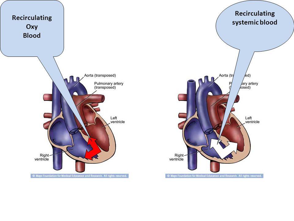 Recirculating Oxy Blood Recirculating systemic blood