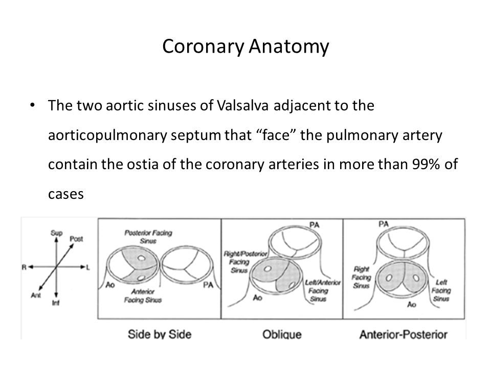 """Coronary Anatomy The two aortic sinuses of Valsalva adjacent to the aorticopulmonary septum that """"face"""" the pulmonary artery contain the ostia of the"""
