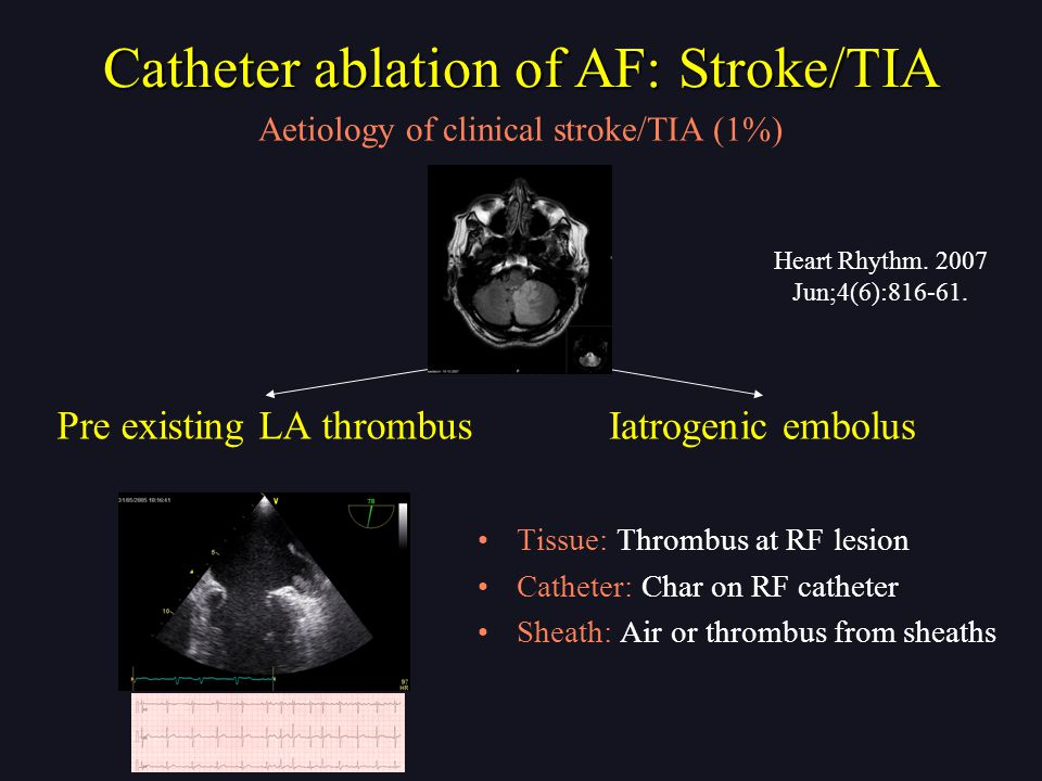 Tissue: Thrombus at RF lesion Catheter: Char on RF catheter Sheath: Air or thrombus from sheaths Pre existing LA thrombus Iatrogenic embolus Catheter ablation of AF: Stroke/TIA Aetiology of clinical stroke/TIA (1%) Heart Rhythm.