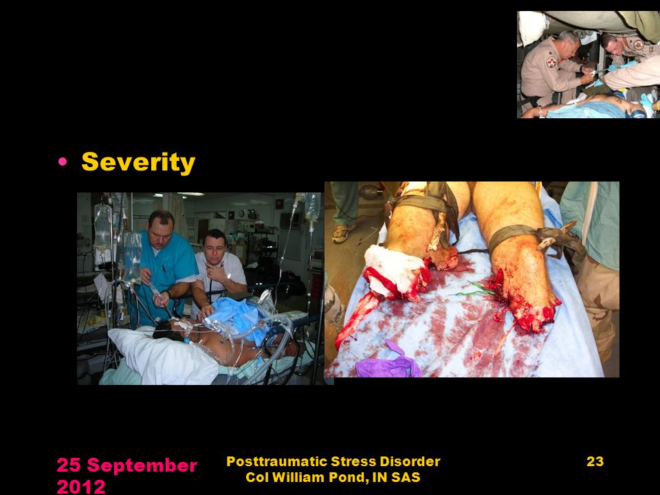 Severity 25 September 2012 Posttraumatic Stress Disorder Col William Pond, IN SAS 23