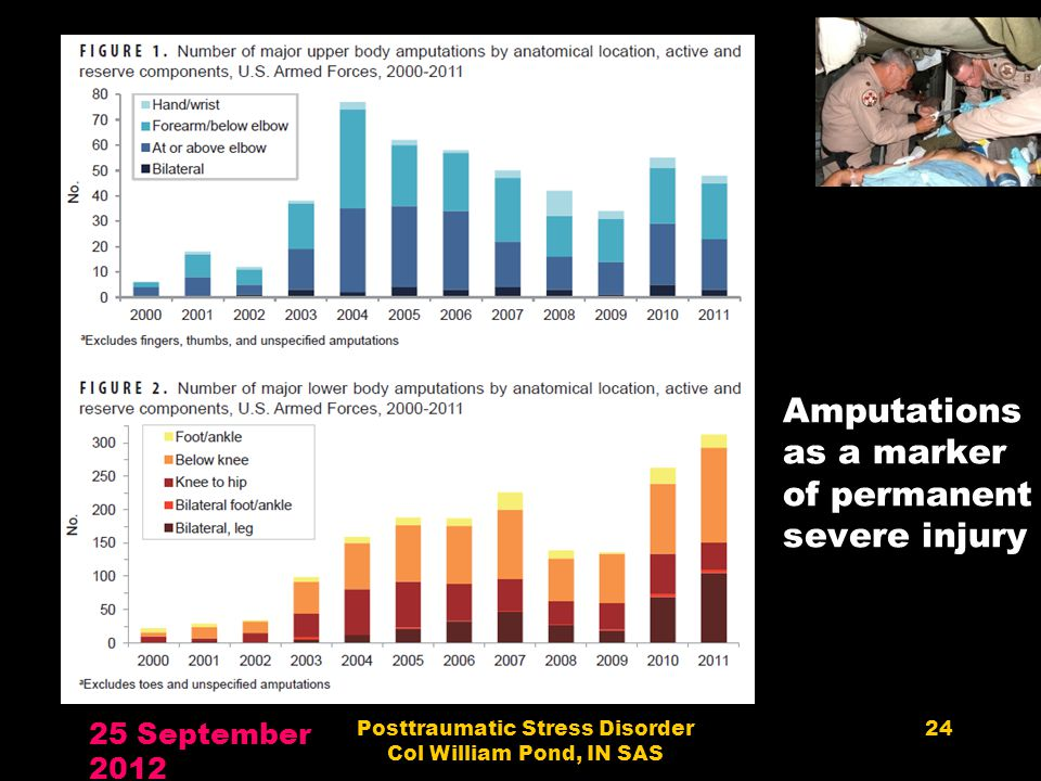 Amputations as a marker of permanent severe injury 25 September 2012 Posttraumatic Stress Disorder Col William Pond, IN SAS 24