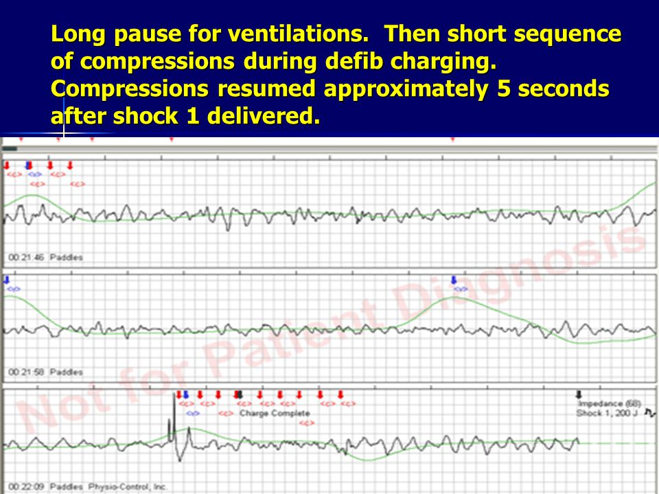 Long pause for ventilations.Then short sequence of compressions during defib charging.