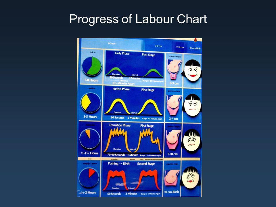 Progress of Labour Chart