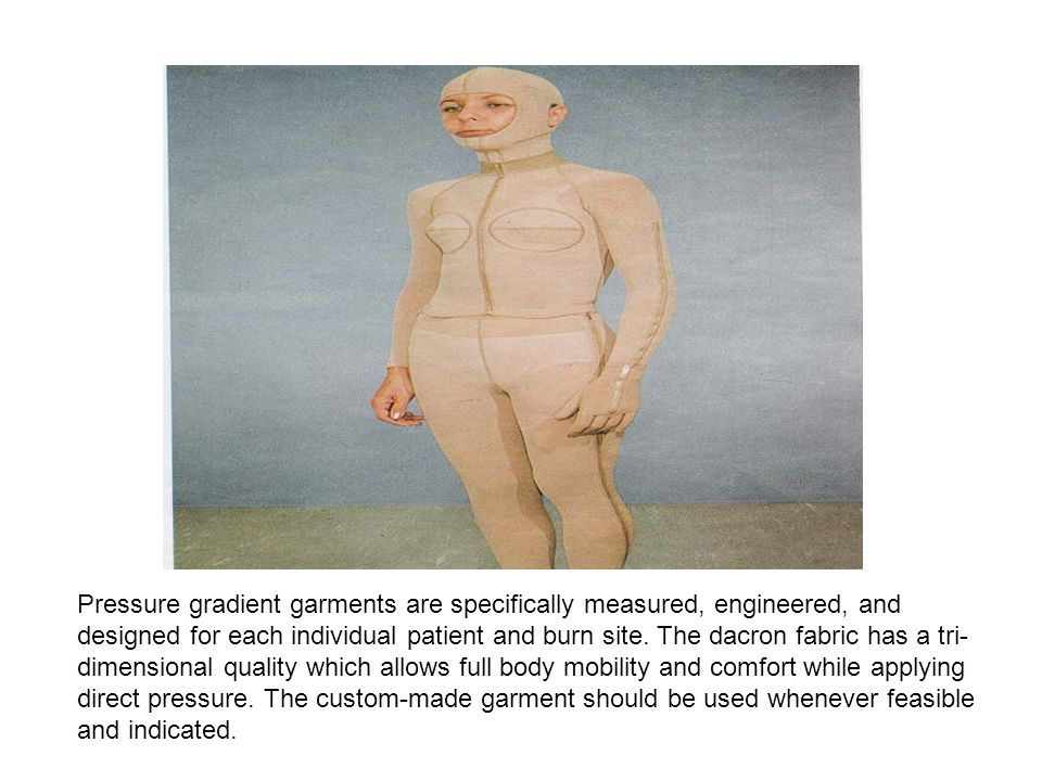 Silastic-Elastomer molds are used in conjunction with pressure garments and splints.