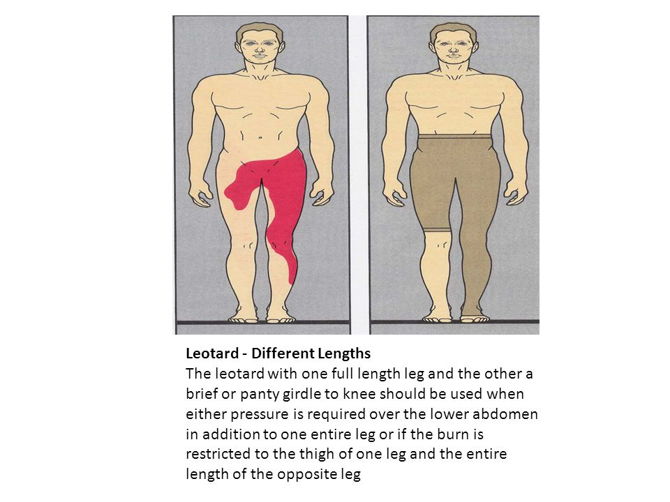 Leotard - Different Lengths The leotard with one full length leg and the other a brief or panty girdle to knee should be used when either pressure is