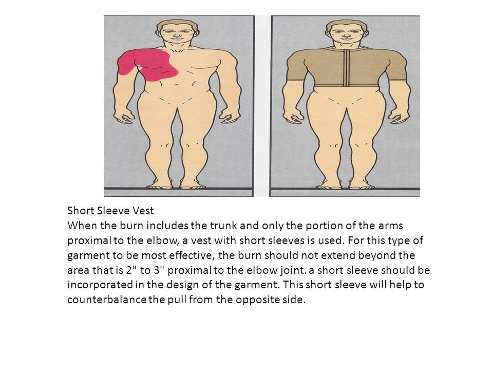 Short Sleeve Vest When the burn includes the trunk and only the portion of the arms proximal to the elbow, a vest with short sleeves is used. For this