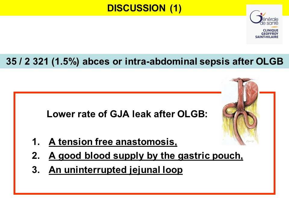 DISCUSSION (1) Lower rate of GJA leak after OLGB: 1.A tension free anastomosis, 2.A good blood supply by the gastric pouch, 3.An uninterrupted jejunal loop 35 / 2 321 (1.5%) abces or intra-abdominal sepsis after OLGB