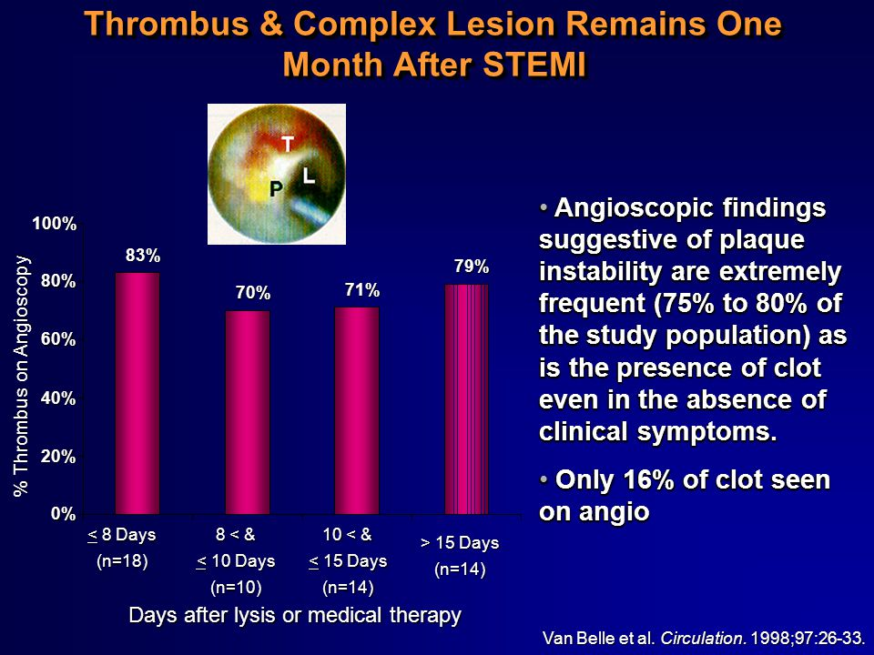 Thrombus & Complex Lesion Remains One Month After STEMI Van Belle et al. Circulation. 1998;97:26-33. % Thrombus on Angioscopy < 8 Days (n=18) 8 < & <