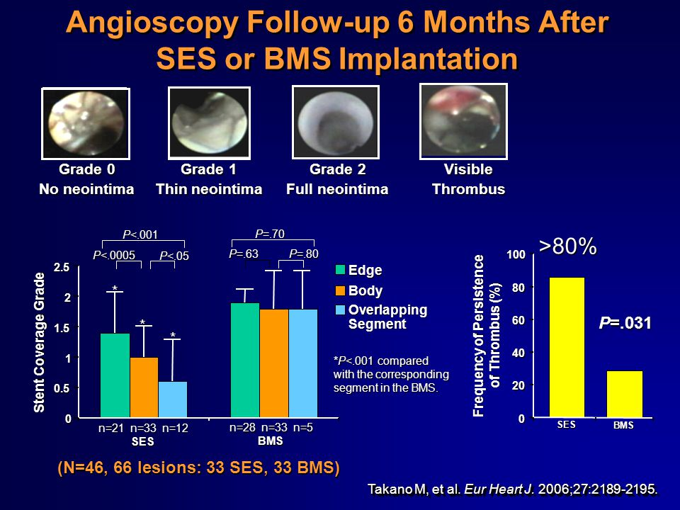 Takano M, et al. Eur Heart J. 2006;27:2189-2195. Angioscopy Follow-up 6 Months After SES or BMS Implantation P=.031 Frequency of Persistence of Thromb