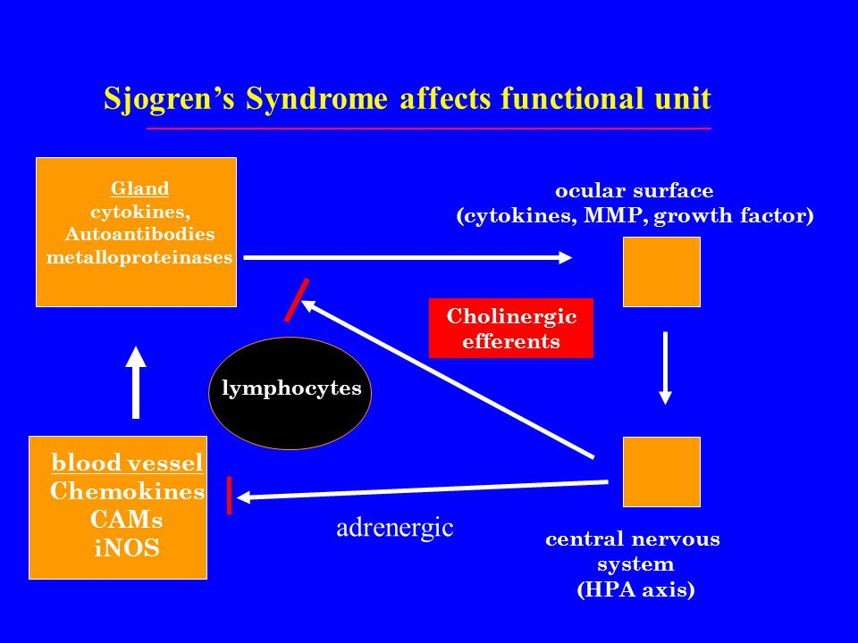 Sjogren's Syndrome affects functional unit ocular surface (cytokines, MMP, growth factor) Gland cytokines, Autoantibodies metalloproteinases central nervous system (HPA axis) blood vessel Chemokines CAMs iNOS lymphocytes Cholinergic efferents adrenergic