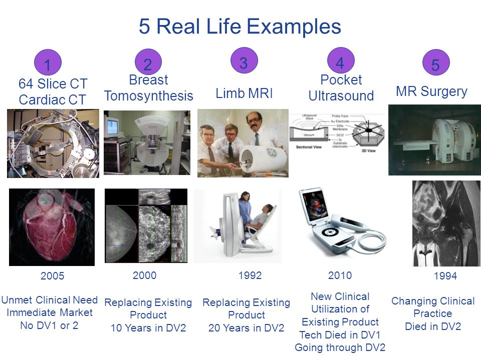 5 Real Life Examples MR Surgery Breast Tomosynthesis Limb MRI 64 Slice CT Cardiac CT Unmet Clinical Need Immediate Market No DV1 or 2 Replacing Existi