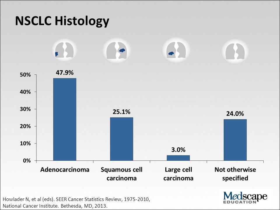 NSCLC Histology Howlader N, et al (eds). SEER Cancer Statistics Review, 1975-2010, National Cancer Institute. Bethesda, MD, 2013.