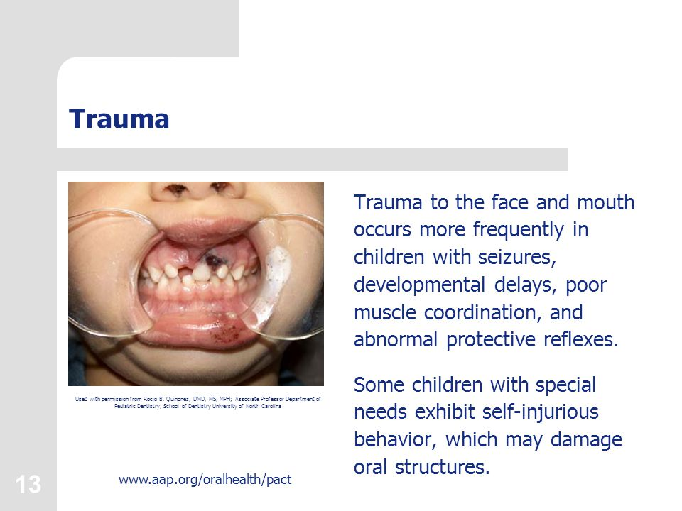 13 www.aap.org/oralhealth/pact Trauma Trauma to the face and mouth occurs more frequently in children with seizures, developmental delays, poor muscle