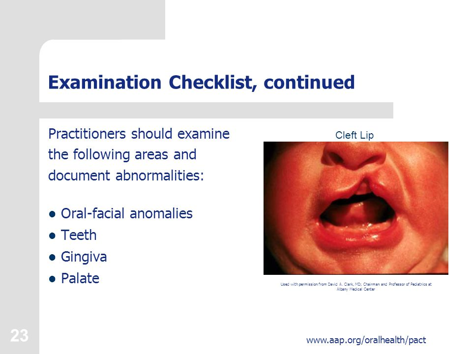 23 www.aap.org/oralhealth/pact Examination Checklist, continued Practitioners should examine the following areas and document abnormalities: Oral-faci