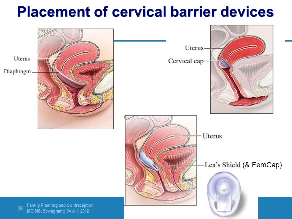 Family Planning and Contraception MGIMS, Sewagram;; 04 Jul 2012 39 Placement of cervical barrier devices (& FemCap)