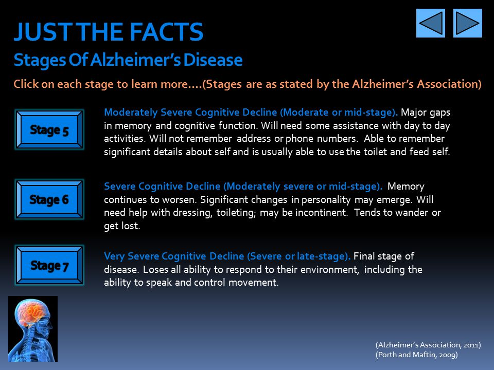 JUST THE FACTS Stages Of Alzheimer's Disease No Impairment. Person does not show any signs and symptoms to a medical professional or family members. V