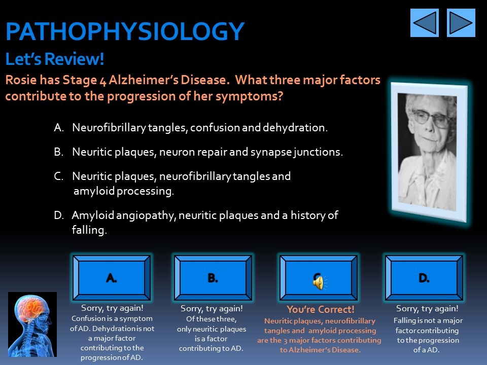 PATHOPHYSIOLOGY Pathological Aspects What does this all mean? Eventually, plaques and tangles spread to large portions of the brain causing severe atr