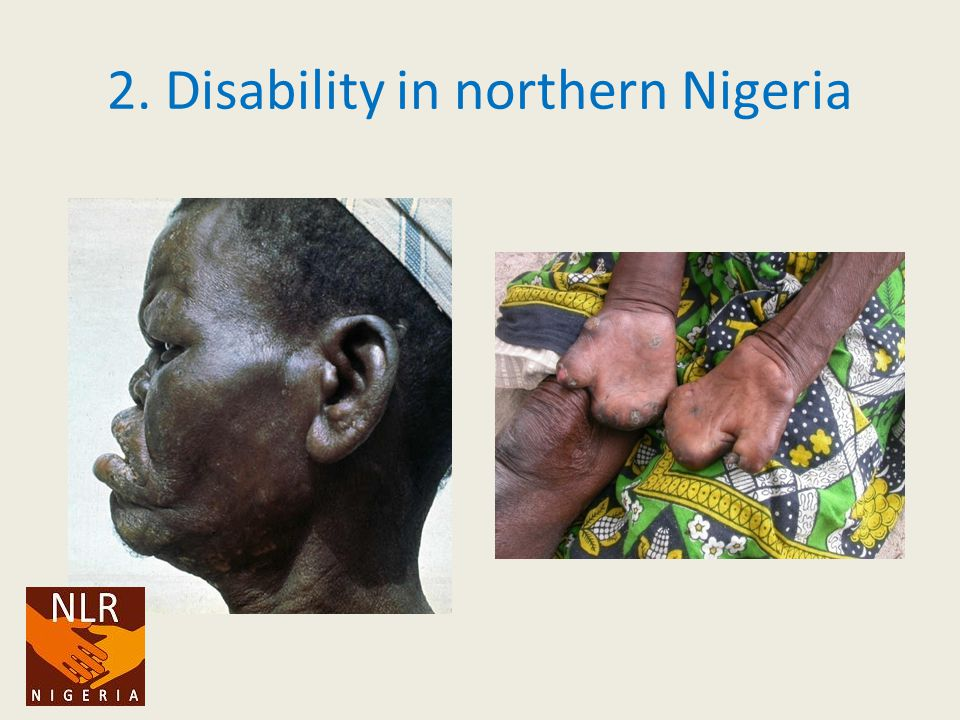 2. Disability in northern Nigeria