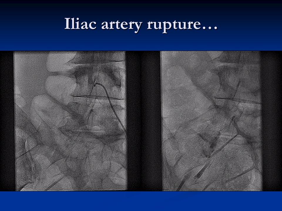 Iliac artery rupture…