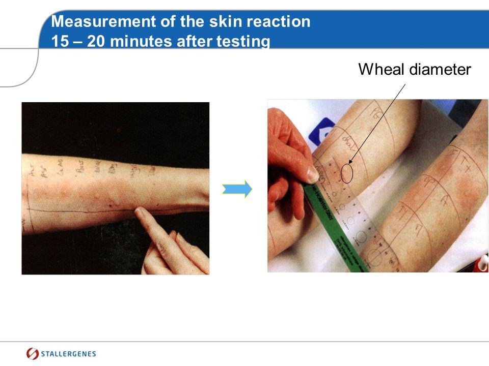 Stallerpoint® Allergens Skin prick-tests method