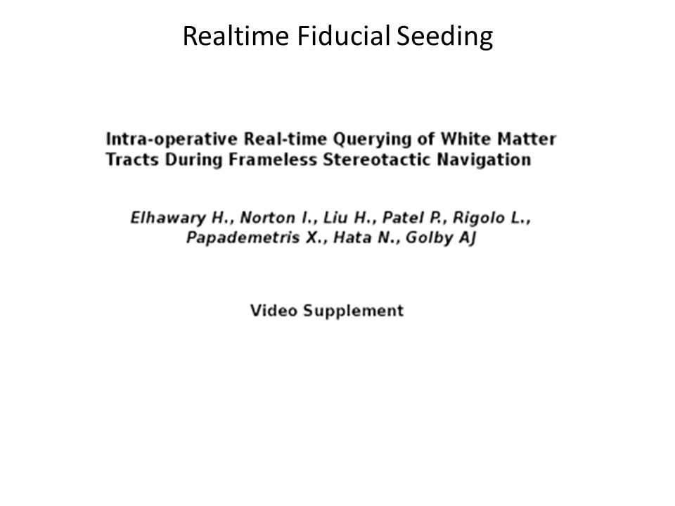 Realtime Fiducial Seeding