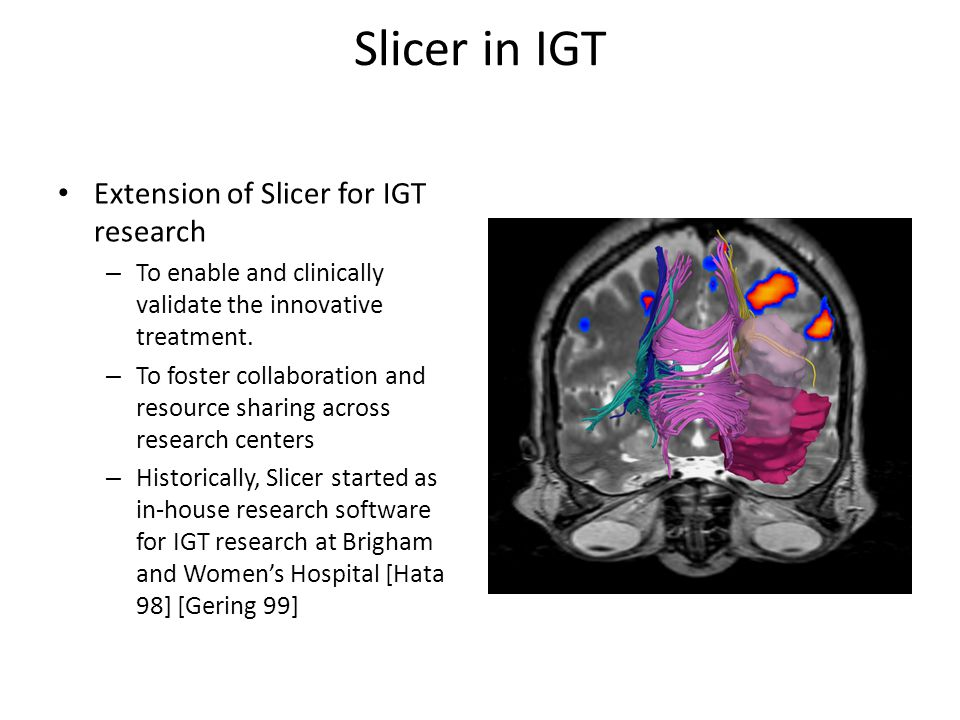 Slicer in IGT Extension of Slicer for IGT research – To enable and clinically validate the innovative treatment.