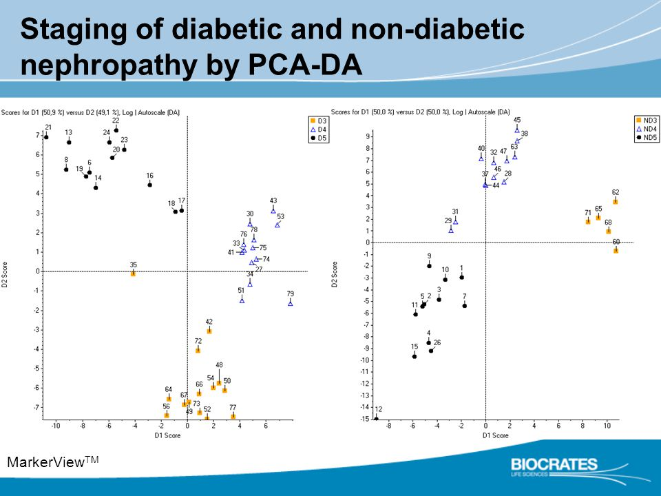 Staging of diabetic and non-diabetic nephropathy by PCA-DA MarkerView TM