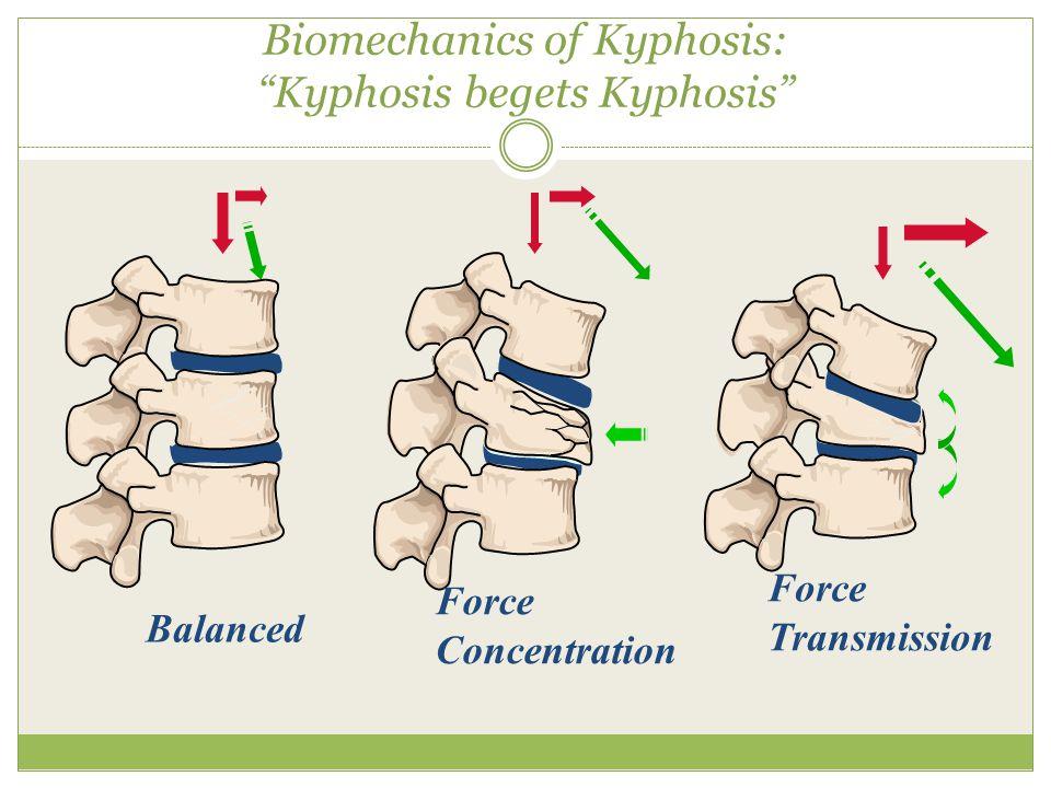 Balanced Force Concentration Force Transmission Biomechanics of Kyphosis: Kyphosis begets Kyphosis