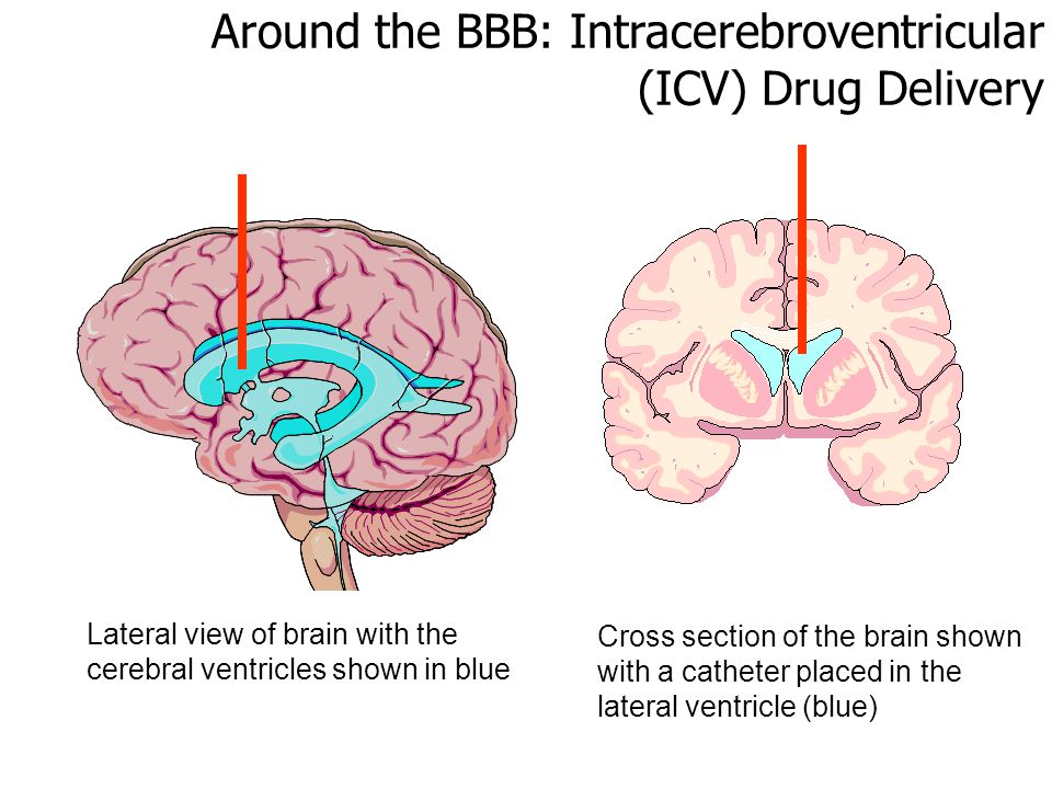 Around the BBB: Intracerebroventricular (ICV) Drug Delivery Lateral view of brain with the cerebral ventricles shown in blue Cross section of the brain shown with a catheter placed in the lateral ventricle (blue)