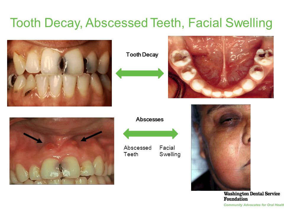 14 Tooth Decay, Abscessed Teeth, Facial Swelling Abscesses Tooth Decay Facial Swelling Abscessed Teeth