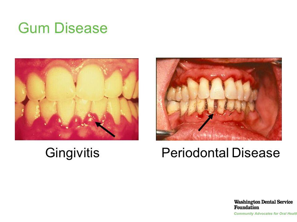 22 Gum Disease GingivitisPeriodontal Disease