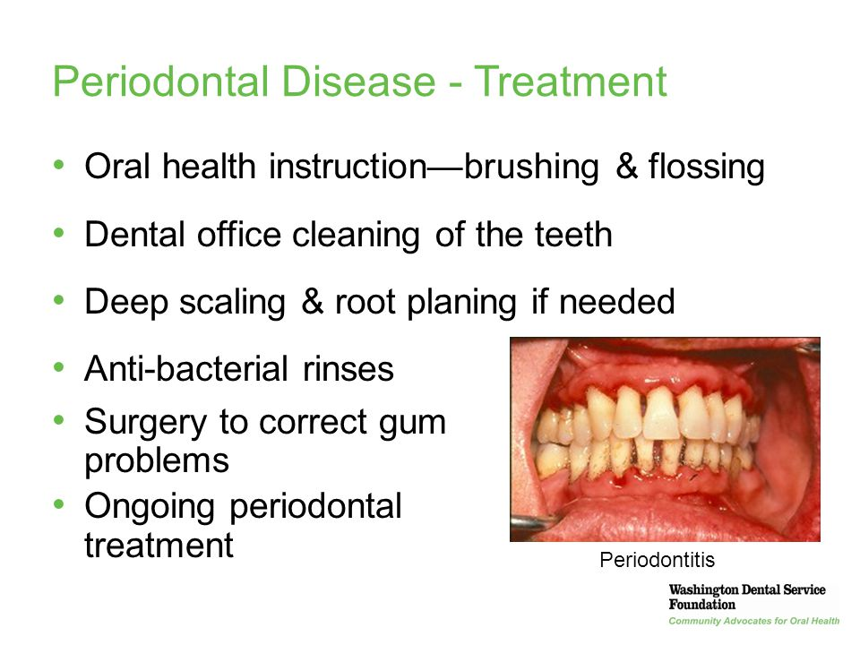 26 Periodontal Disease - Treatment Oral health instruction—brushing & flossing Dental office cleaning of the teeth Deep scaling & root planing if need