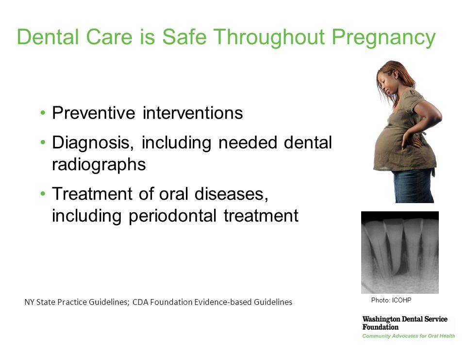 35 Dental Care is Safe Throughout Pregnancy Preventive interventions Diagnosis, including needed dental radiographs Treatment of oral diseases, includ
