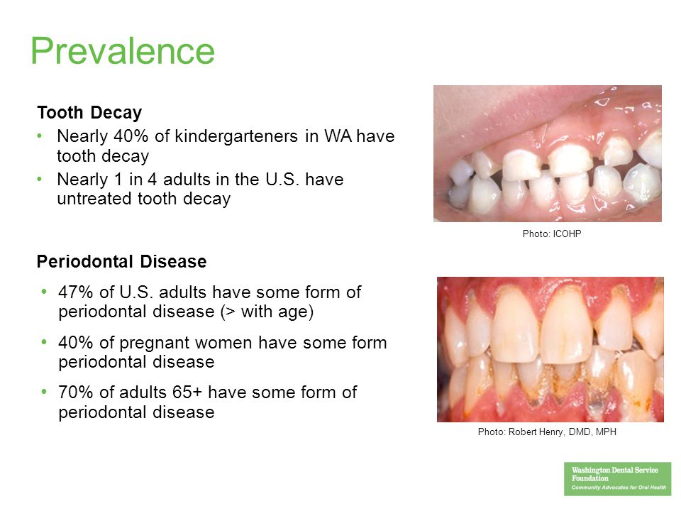 4 Prevalence Tooth Decay Nearly 40% of kindergarteners in WA have tooth decay Nearly 1 in 4 adults in the U.S. have untreated tooth decay Periodontal