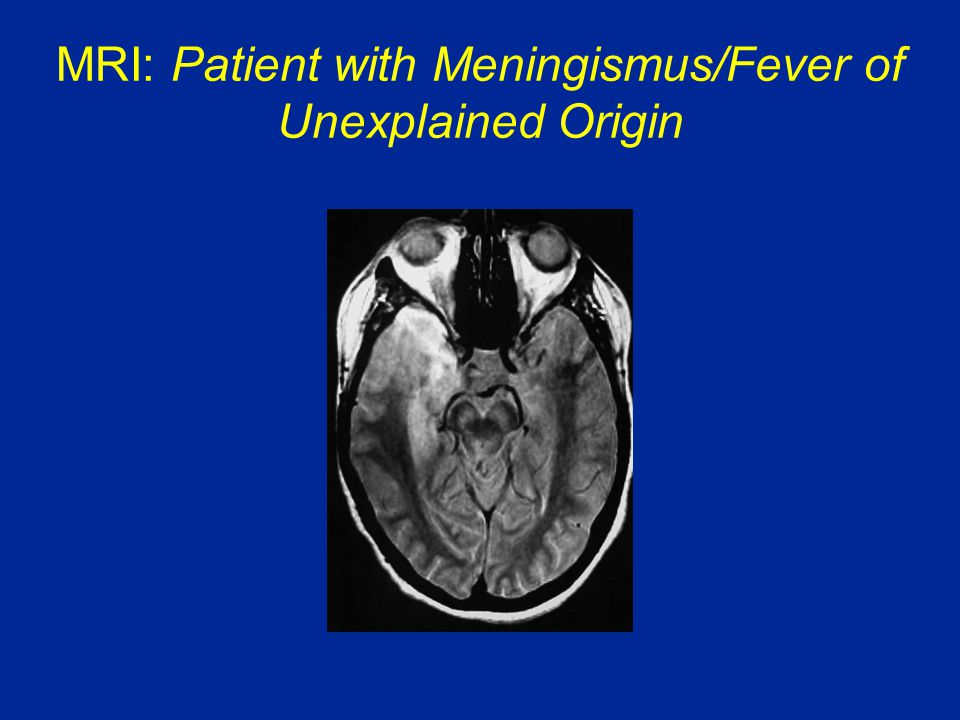 MRI: Patient with Meningismus/Fever of Unexplained Origin CT scan