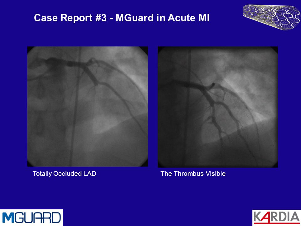 Case Report #3 - MGuard in Acute MI Totally Occluded LADThe Thrombus Visible