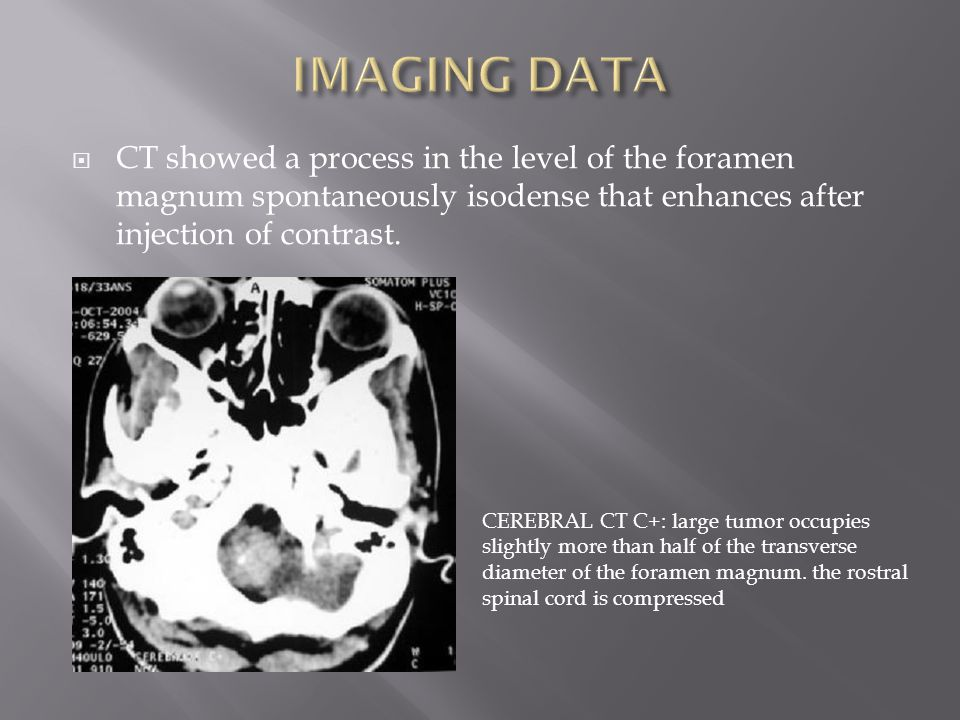  On T2-weighted image: isointense to slightly hyperintense compared with brain  The T1-weighted enhanced contrast imaging shows the dural attachment site of the tumor and it provides ready discrimination between tumor and brainstem  Once the diagnosis of meningioma evoked, MRI should focus on:  locate the tumor in the axial plane at the foramen magnum: anterior, lateral or posterior  define the compartment where it develops: intra dural or extradural or both (in most cases is intradural)  clarify its relation to the adjacent vertebral artery which can be invaded by the meningioma Neuroimaging