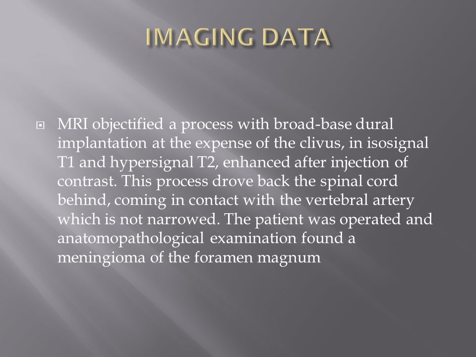  MRI objectified a process with broad-base dural implantation at the expense of the clivus, in isosignal T1 and hypersignal T2, enhanced after inject