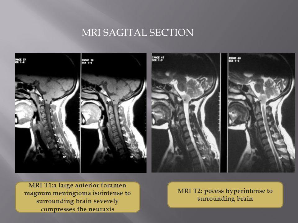 MRI SAGITAL SECTION MRI T1:a large anterior foramen magnum meningioma isointense to surrounding brain severely compresses the neuraxis MRI T2: pocess hyperintense to surrounding brain