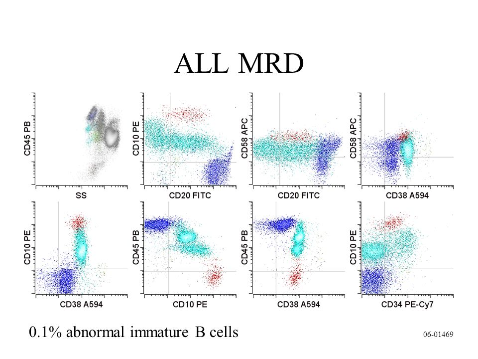 0.1% abnormal immature B cells ALL MRD 06-01469