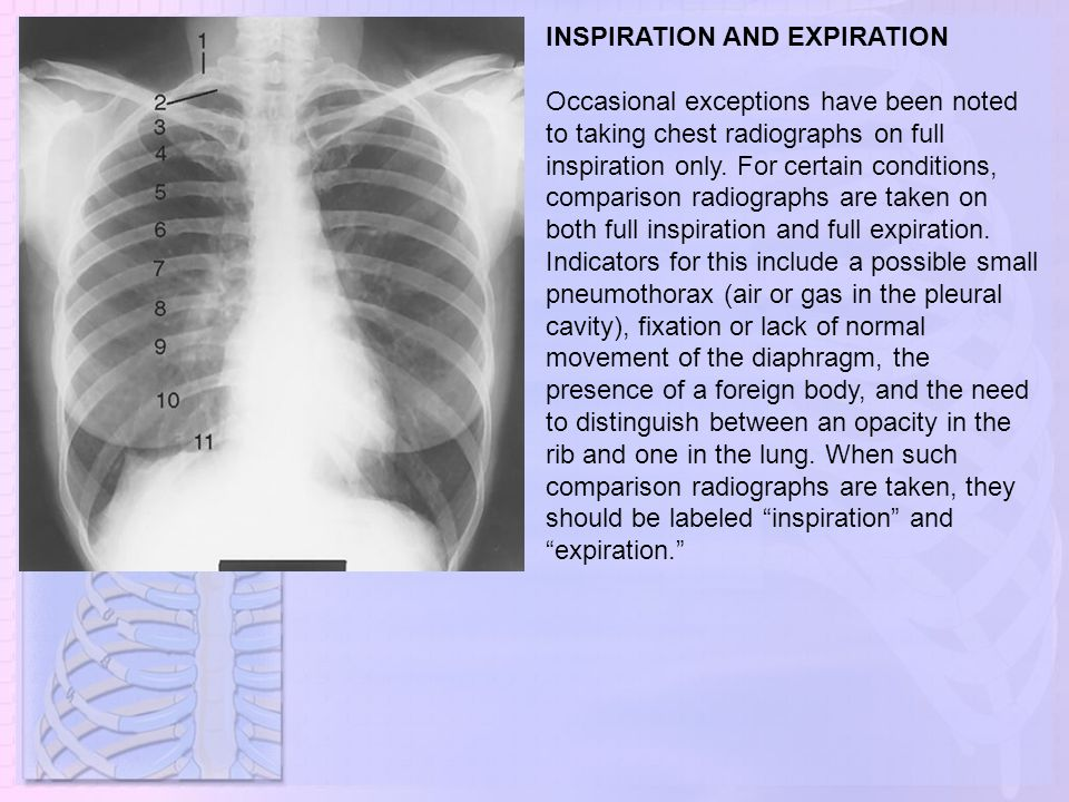 INSPIRATION AND EXPIRATION Occasional exceptions have been noted to taking chest radiographs on full inspiration only. For certain conditions, compari